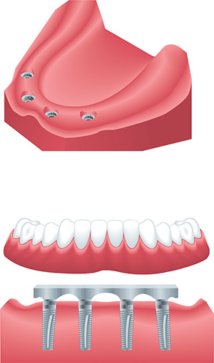 best dental implants in Vancouver